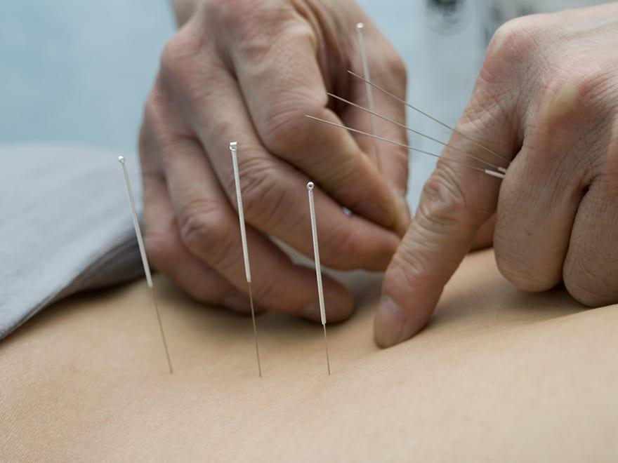 TCM acupuncture