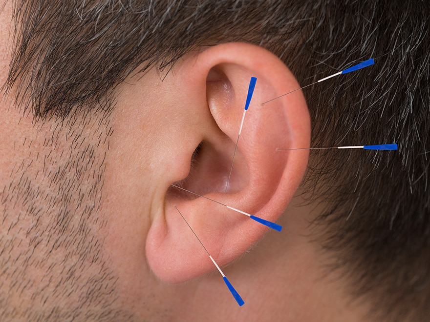 Micro-systems acupuncture